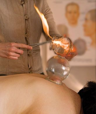 What is Fire Cupping Therapy?